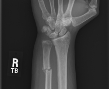 Forearm with broken Ulna