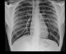 Chest AP with Broken Rib